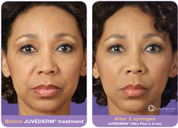 juvederm-before-after-3